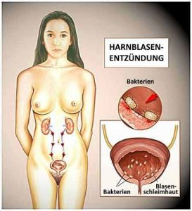 Eine Blasenentzündung ist eine Erkrankung des Harntrakts.