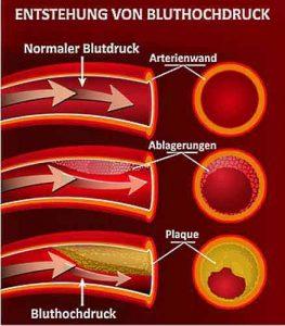 Durch eine Verengung der Arterien entsteht Bluthochdruck.