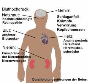Bluthochdruck wirkt sich auf verschiedene Organe aus.