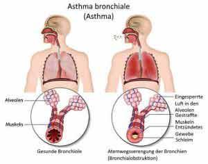 Durch Hausstaubmilbenallergie kann Asthma entstehen.