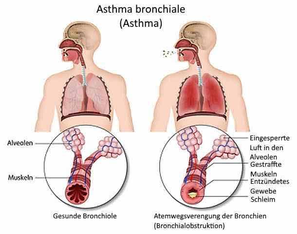 betekenis astma