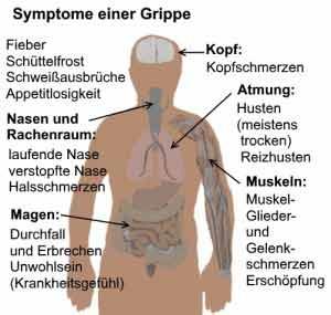 Grippe hat einige typische Symptome.