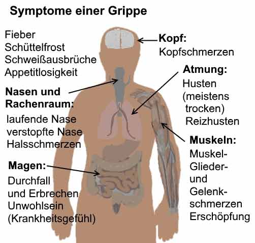 Trockener Hals, Symptome und Heilmittel