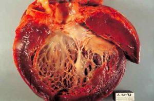 Erhöhte Troponin-Werte können auf eine Kardiomyopathie hinweisen.