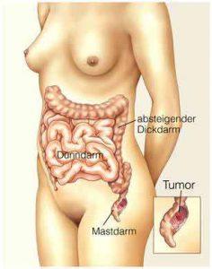 Darmkrebs Früherkennung kann Leben retten!