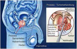 Prostatakrebs lässt sich mit Strahlentherapie lokal bekämpfen.