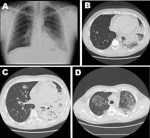 Kranheitsstadien der Legionellose, einer durch Legionellen verursachten Pneumonie