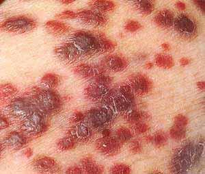 HIV kann Kaposi-Sarkome verursachen.