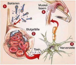 Eine Tetanus-Infektion wird durch Bakterien ausgelöst, die in den Blutkreislauf gelangen.