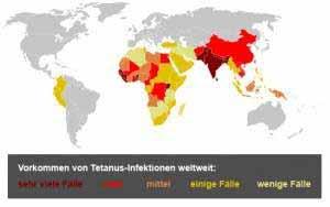 Tetanus Infektionen gibt es weltweit.