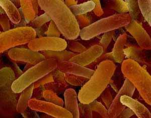 Ein Abklatschtest spürt Salmonellen auf, die mit rohem Geflügel oder Eiern übertragen werden und Durchfälle und Fieber auslösen.