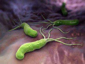 Das Bakterium Helicobacter pylori kann Magengeschwüre und Magenkrebs verursachen kann.