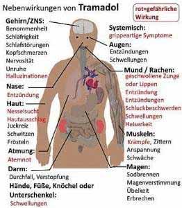 Die Nebenwirkungen von Tramadol sind vielfältig und schwerwiegend.