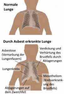 Asbest schädigt die Lunge und kann Krebs verursachen.