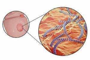 Erreger der Syphilis ist das schraubenförmig gewundene Bakterium Treponema pallidum.
