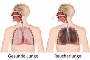 Die so genannte Raucherlunge entsteht, weil Nikotin und Partikel im Rauch das Lungengewebe schädigen.