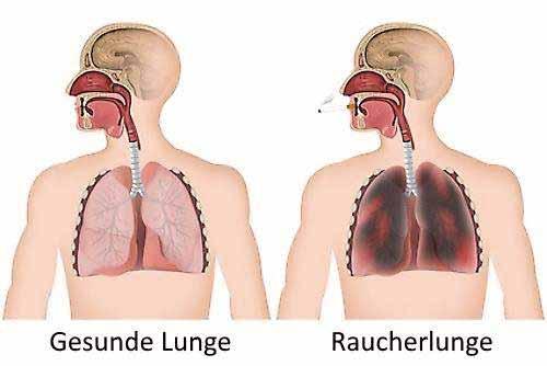 Rauchen und Nikotinsucht : Die Wirkung von Nikotin auf den Körper?