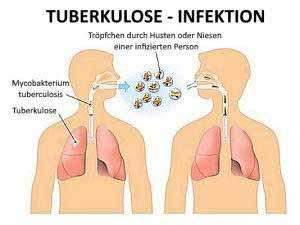 Tuberkulose wird durch Tröpfcheninfektion beim Husten und Niesen übertragen.