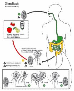 Giardiasis wird durch Cysten von Gardien verursacht.