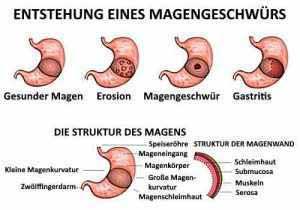 Magengeschwüre werden oft durch das Bakterium Helicobacter pylori verursacht.