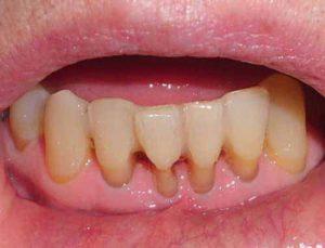 Parodontitis führt zu Zahnfleischschwund und Knochenabbau.