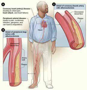 Ein hoher CRP Wert kann auf Arteriosklerose hinweisen.