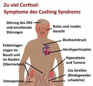 Cortisol wird auch als Stresshormon bezeichnet und kann das Cushing Syndrom verursachen.