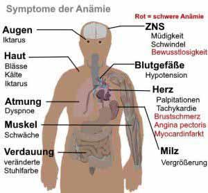 Perniziöse Anämie ist eine mögliche Folge von Vitamin B12 Mangel.