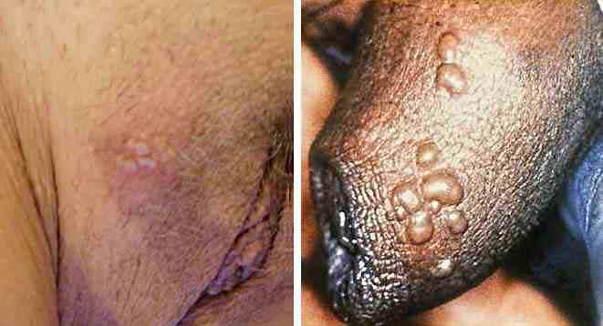 Bakterielle Infektionen des Penis