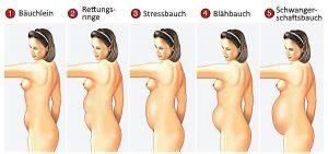 Der Anteil des visceralen Fetts ist nicht am absoluten Bauchumfang zu erkennen.