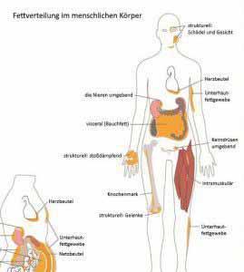 Ein metabolisches Syndrom wird durch ungünstige Fettverteilung begünstigt.