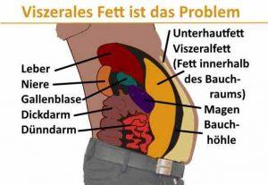 Einer der Hauptrisikofaktoren für ein metabolisches Syndrom ist das viszerale Fett innerhalb der Bauchhöhle.