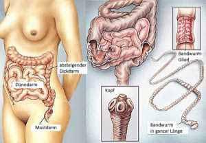 Darmparasiten gelangen über die Verdauung in den Darm.
