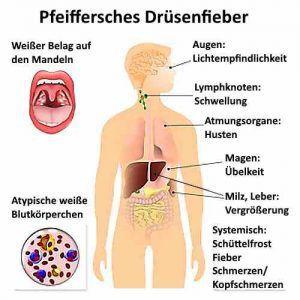 Pfeiffersches Drüsenfieber kann Symptome wie Fieber und Lymphknotenschwellungen verursachen.