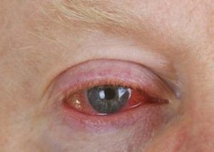 Omega 3 Mangel kann sich in erhöhter Lichtempfindlichkeit und Entzündungen äußern.