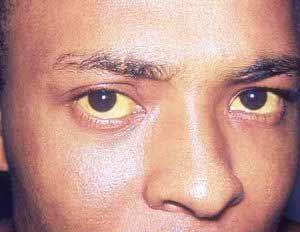 Zu den typischen Symptomen einer Infektion mit Hepatitis A zählt die Gelbfärbung der Augen.